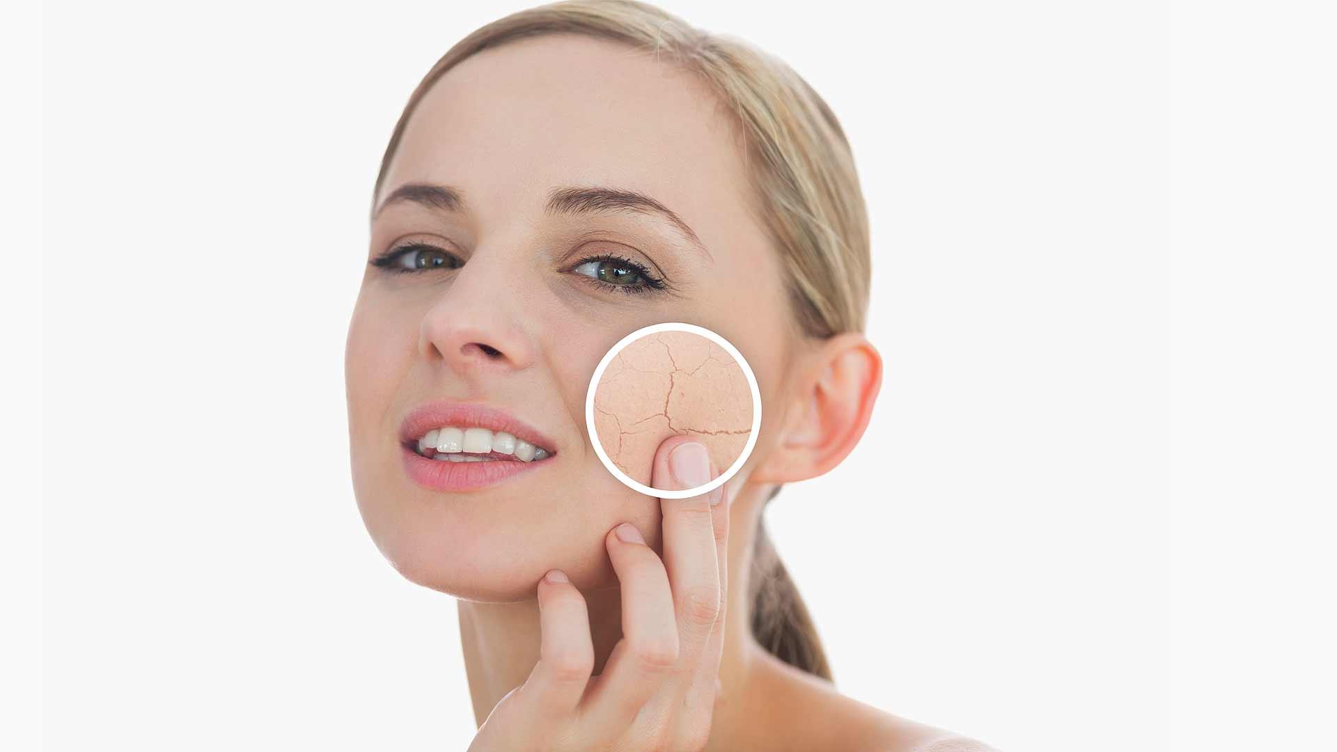 Donna con problema di pelle secca