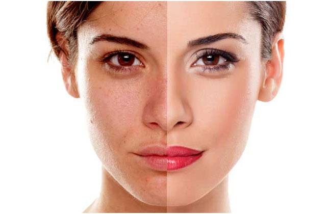 donna con differente tipo di pelle