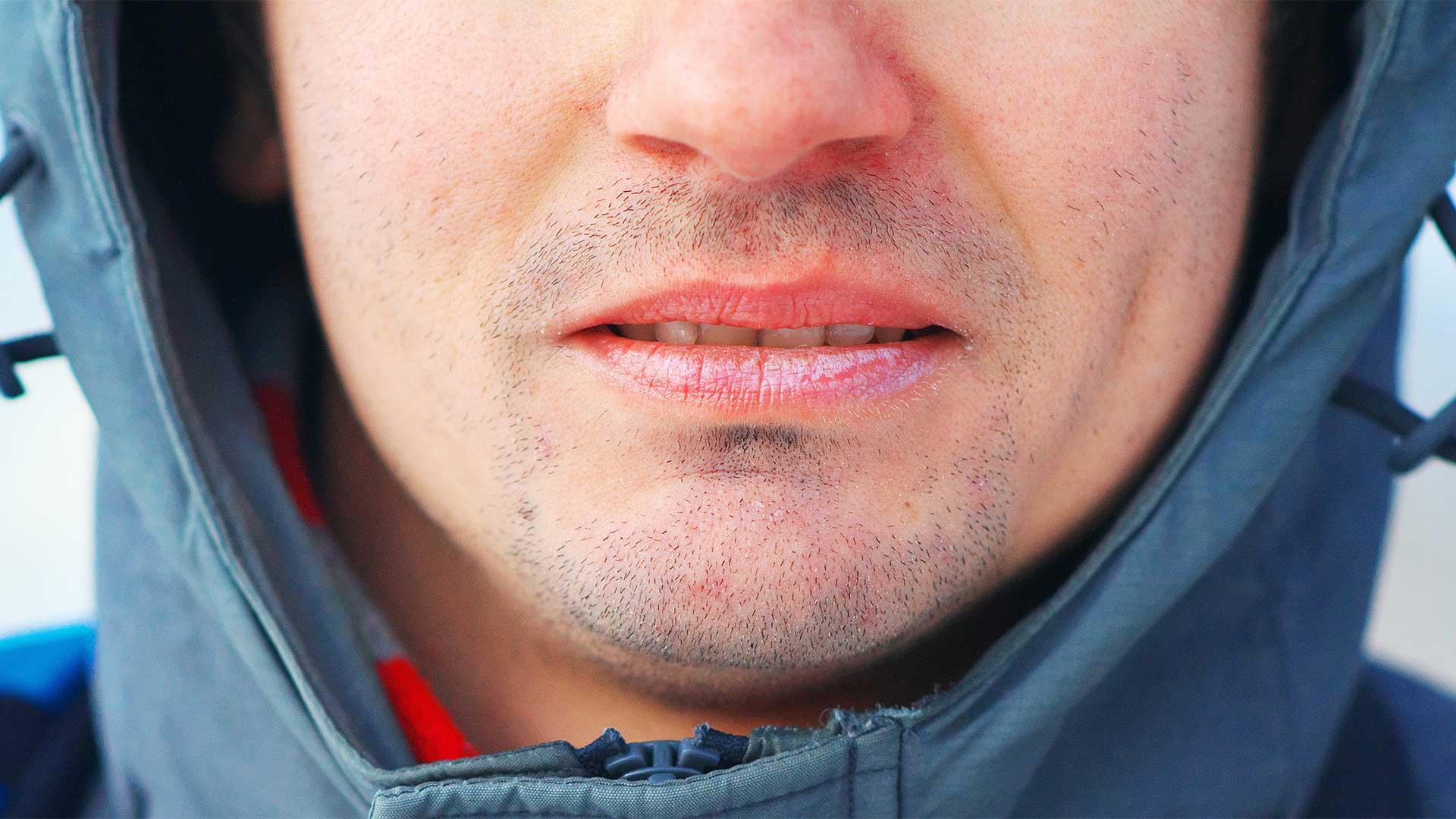 naso screpolato in inverno